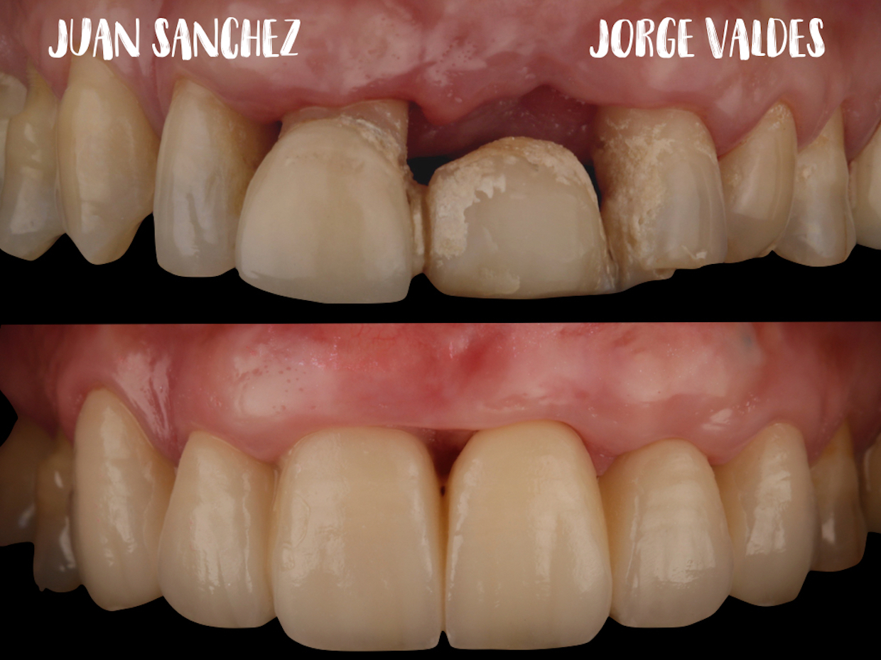 foto antes despues intraoral dsd