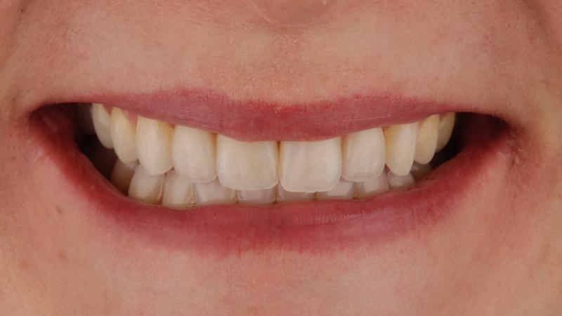 caso clínico de solución a dientes conoides mediante dsd, ortodoncia y carillas dentales prepless