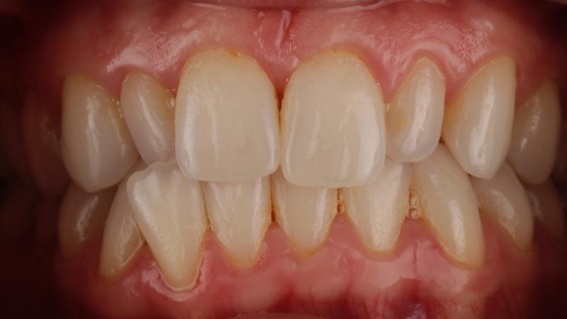 problemas de maloclusión previos a mejora de sonrisa con carillas dentales