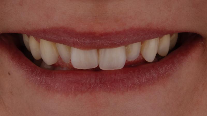 foto inicial con dientes conoides