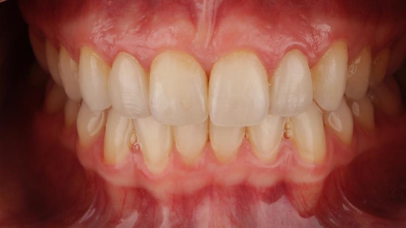 solución a maloclusión y puesta de carillas dentales en paciente