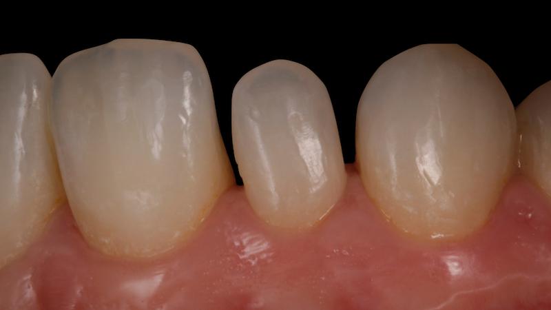 ortodoncia previa a colocación de carillas dentales
