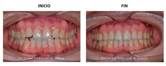 caso de ejemplo ante y después ortodoncia invisalign en Madrid