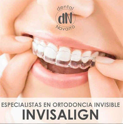 Dentistas especialistas en ortodoncia invisible invisalign en Madrid