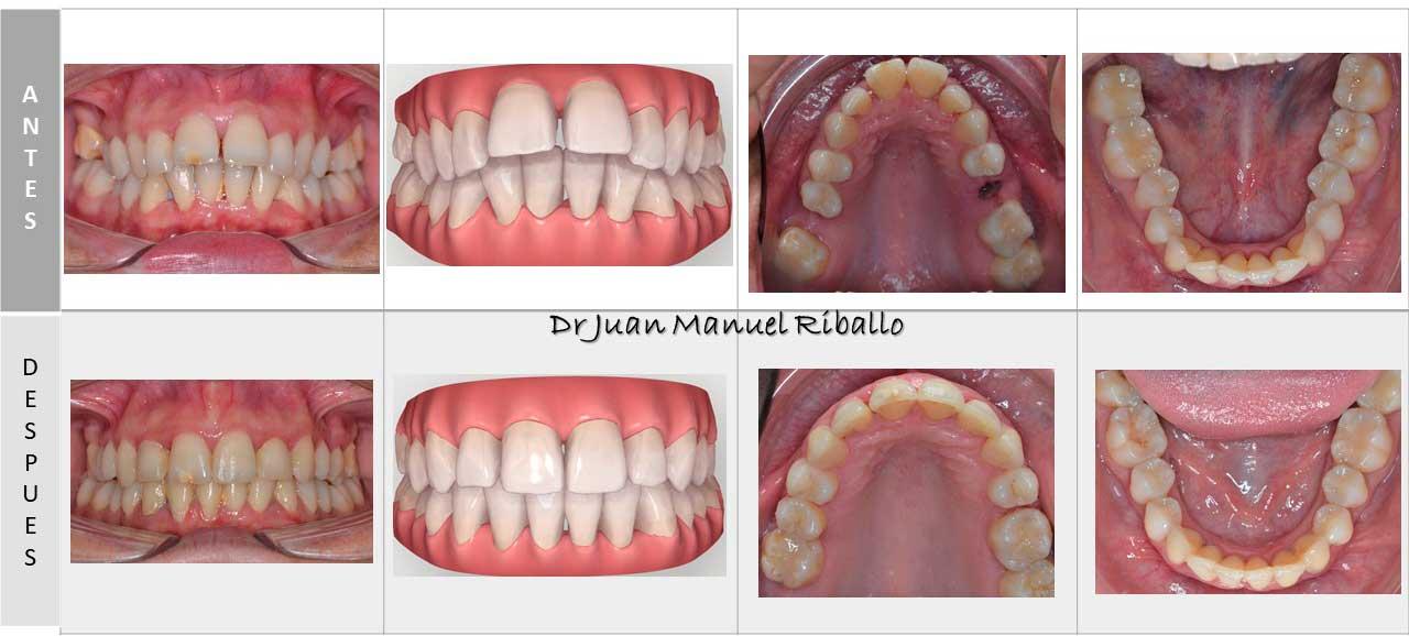 caso completo de ortodoncia invisalign1 con vista previa en ordenador