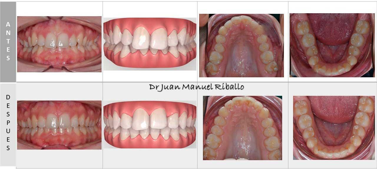 caso de ortodoncia Invisalign con vista previa por ordenador 2