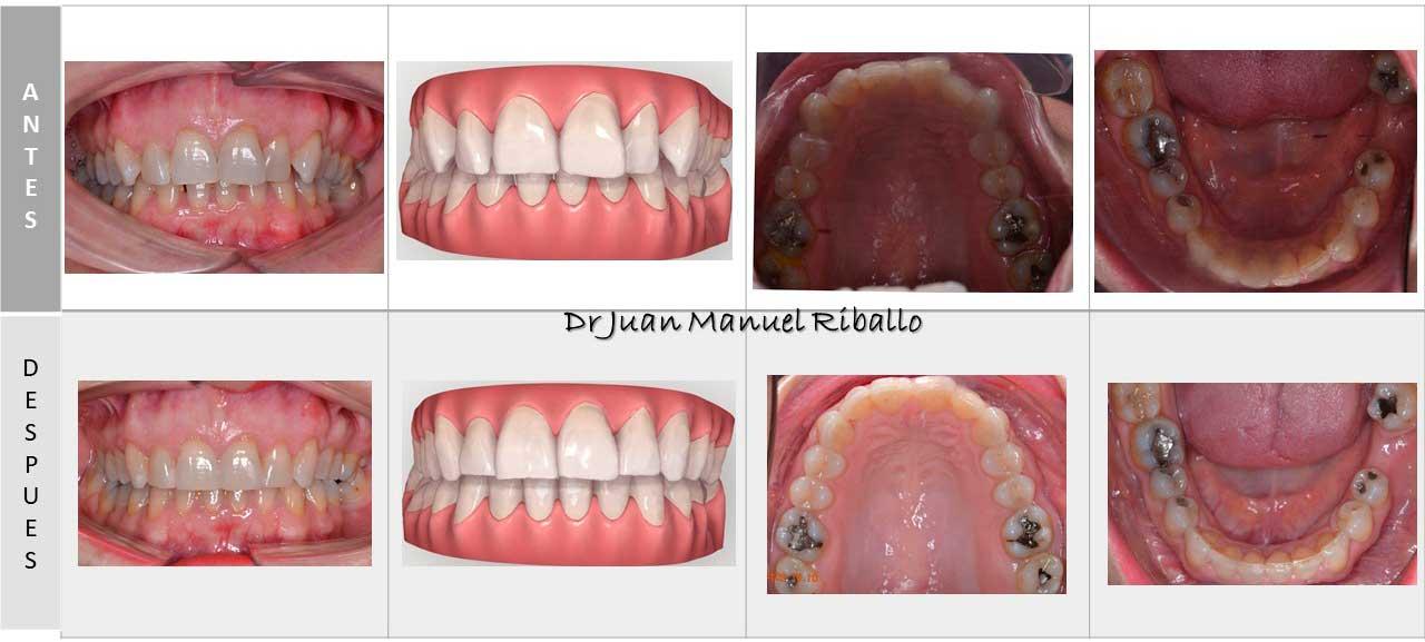 ejemplo de proceso completo con ortodoncia Invisalign con vista previa por ordenador