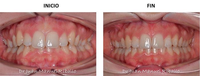 ejemplo 1 de ortodoncia invisalign 18 meses en Madrid
