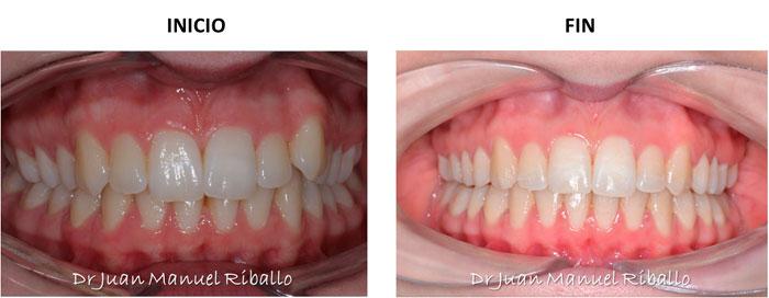 ejemplo 3 de paciente sometido a ortodoncia invisalign en 15 meses