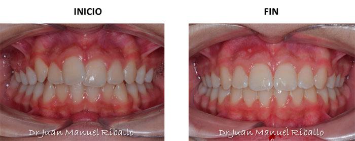 foto de ejemplo de caso en ortodoncia invisalign