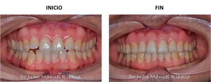 ejemplo de ortodoncia invisalign paciente 20 meses