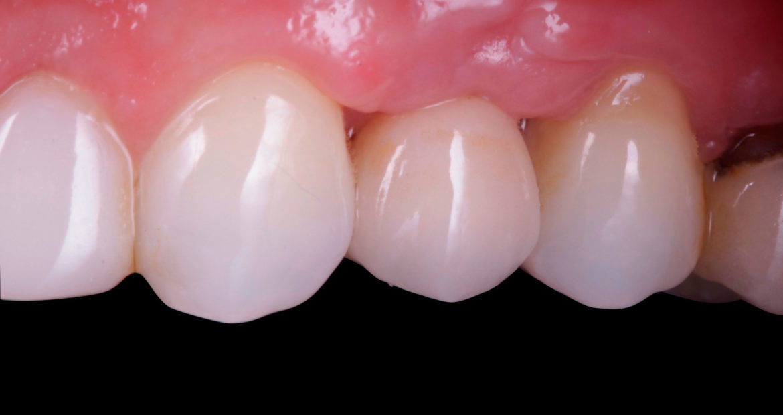 Caso clínico referente a la colocación de implante dental y corona después de extracción y preservación alveolar