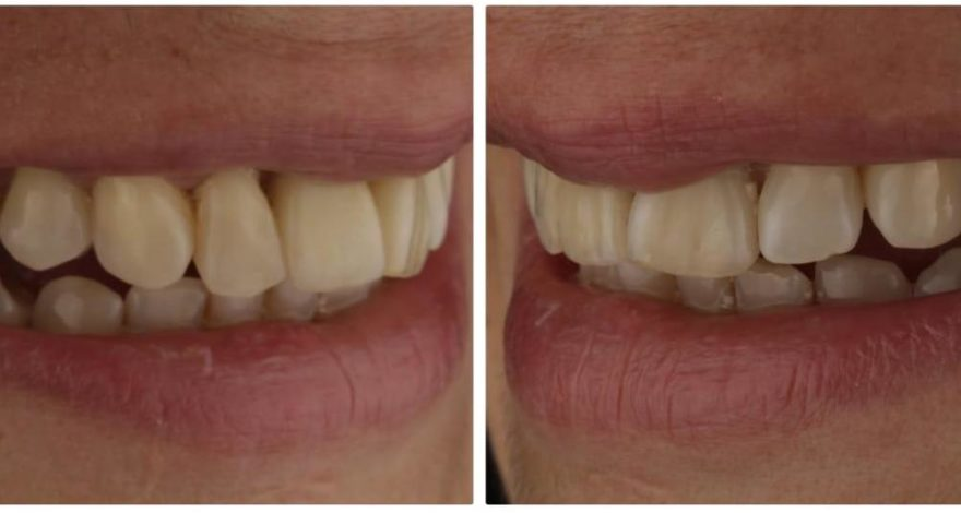 caso restauración de diente fracturado con infección mediante implantes dentales