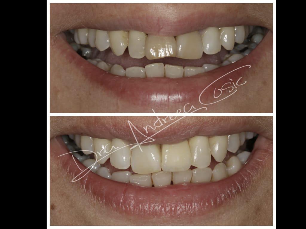 antes y después sustitución de diente fracturado por implante dental