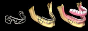 implantes dentales subperiósticos