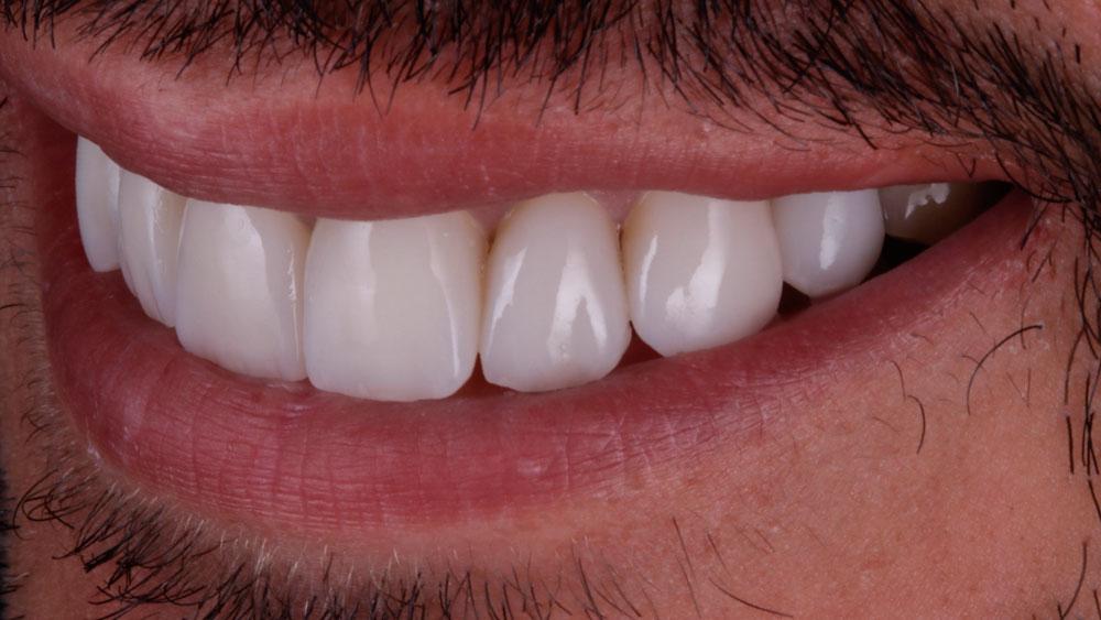 caso-paciente-triangulos-negros-dientes-1