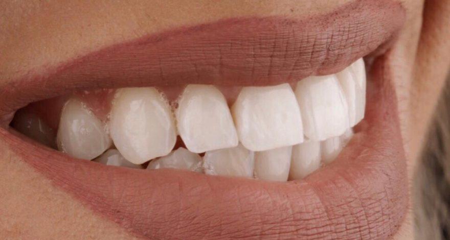 blanqueamiento dental después de cambio de color en diente con traumatismo