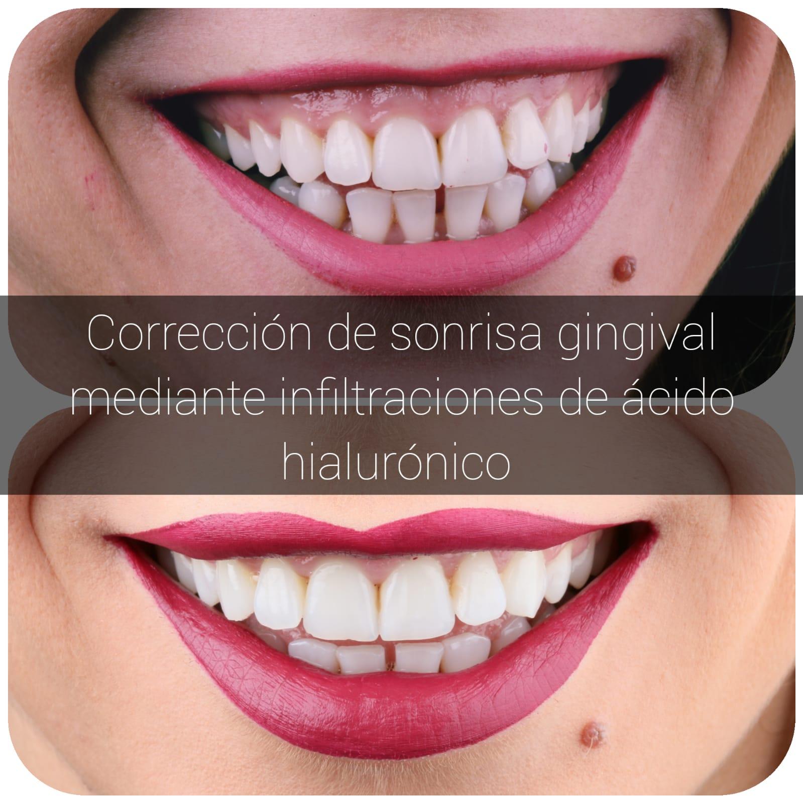 correción de sonrisa gingival con ácido hialurónico