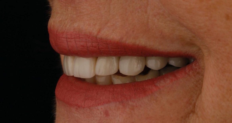 Paciente con desgastes y fracturas en dientes