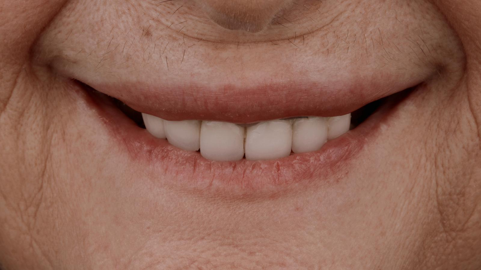 antes de prótesis fija sobre implantes dentales 2