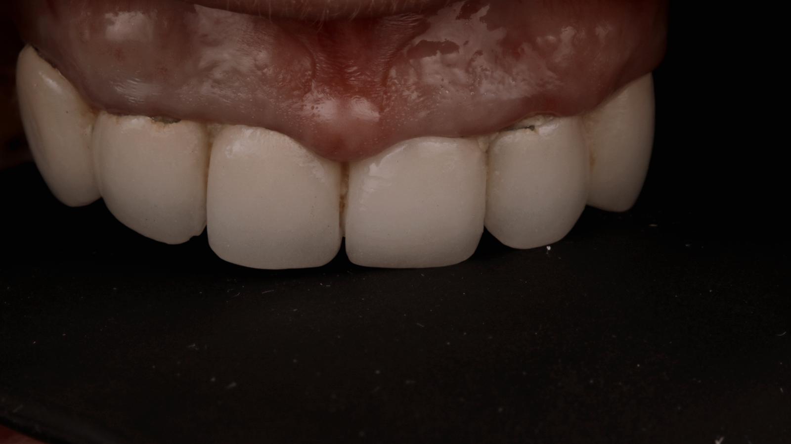 antes de prótesis fija sobre implantes dentales 3