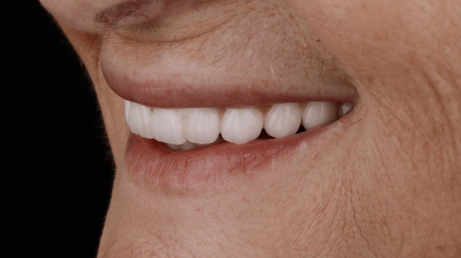 prótesis de cerámica sobre implantes 2