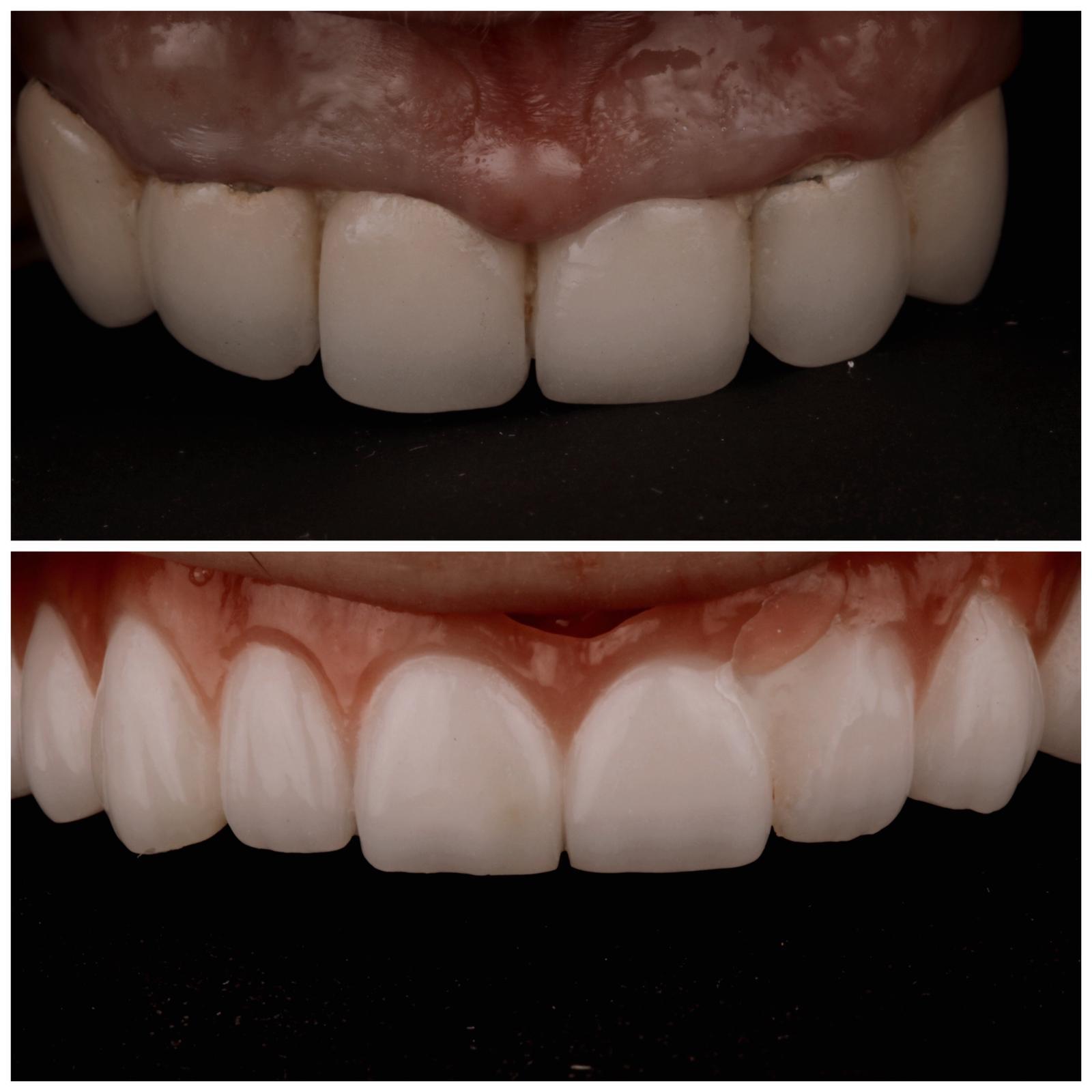 antes y después de prótesis completas fijas sobre implantes