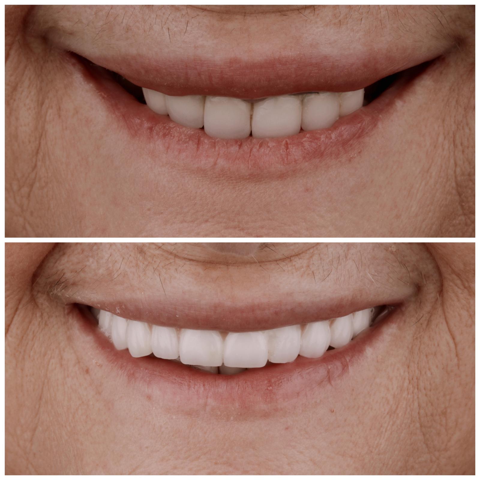 antes y después de prótesis completas fijas sobre implantes 2