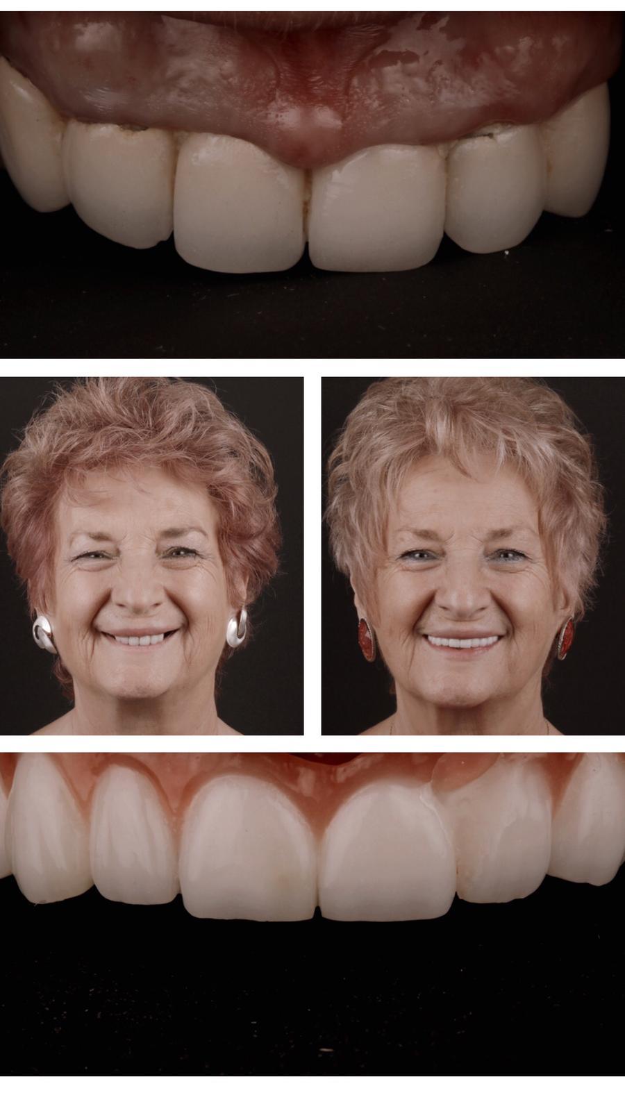 antes y después de prótesis completas fijas sobre implantes 3