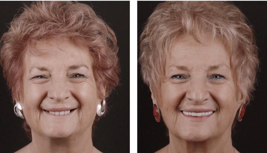 caso de paciente con protesis fija sobre implantes