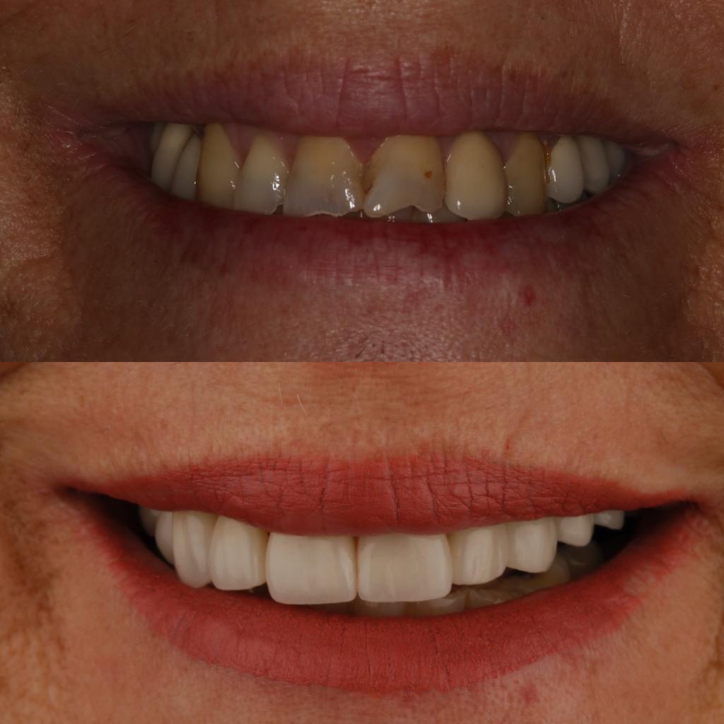 antes y después rehabilitación desgastes y fracturas dentales