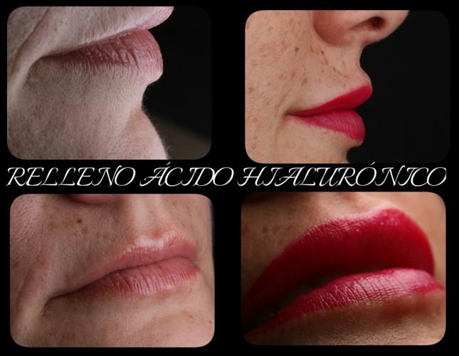 Ácido hialurónico para labios en Madrid