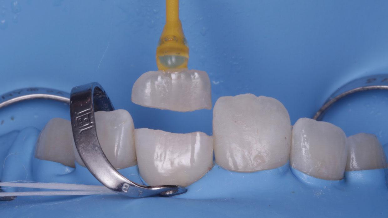 cementado de diente roto por traumatismo o golpe