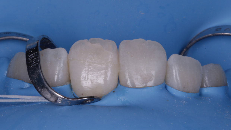 pegado cementado fragmento diente