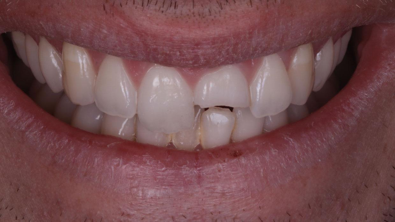 sonrisa diente roto traumatismo dental