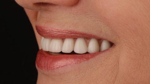 rehabilitación completa mediante prótesis fija de cerámica sobre implantes dentales. Caso clínico