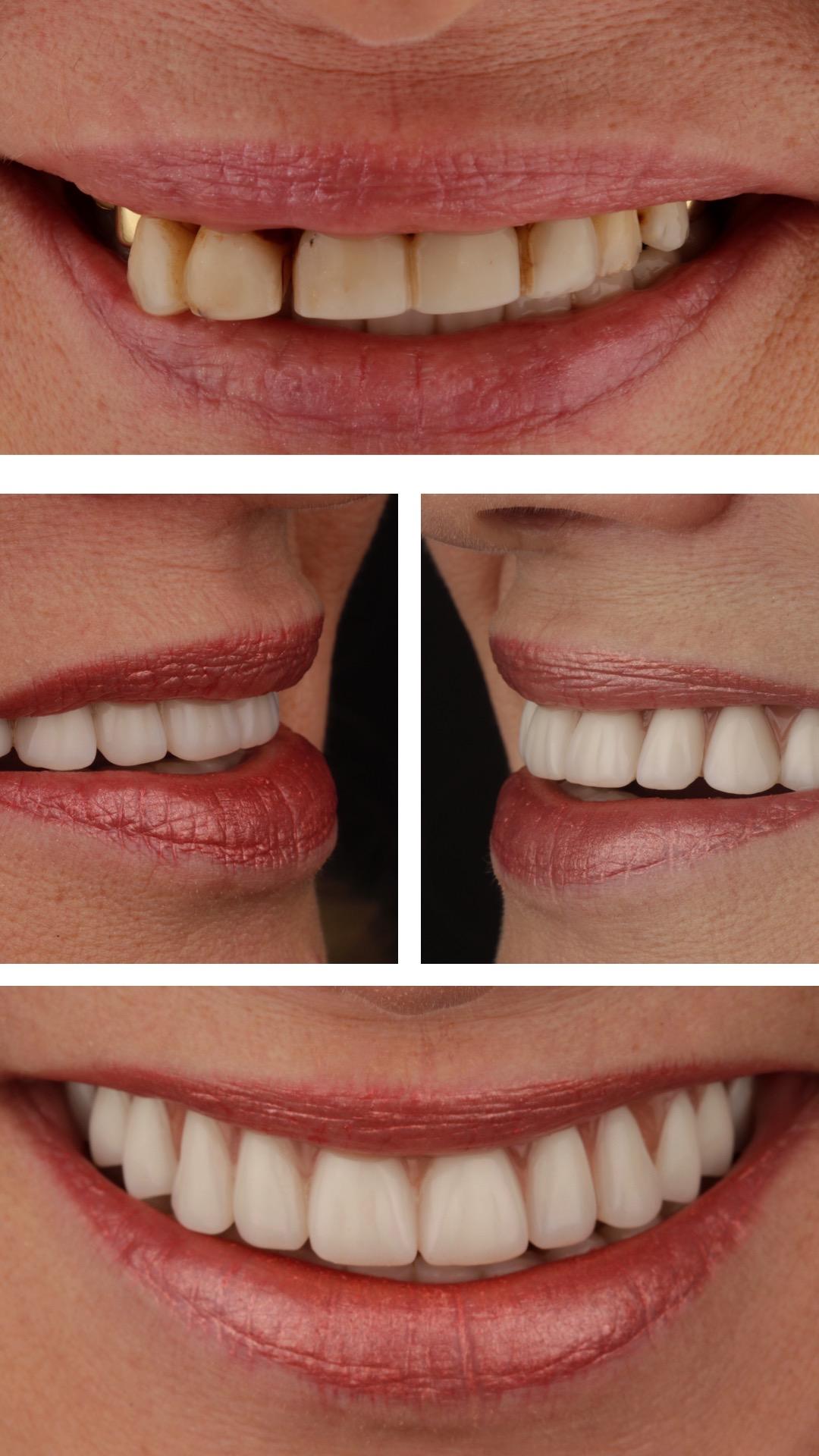 mejora de sonrisa con protesis fijas ceramica