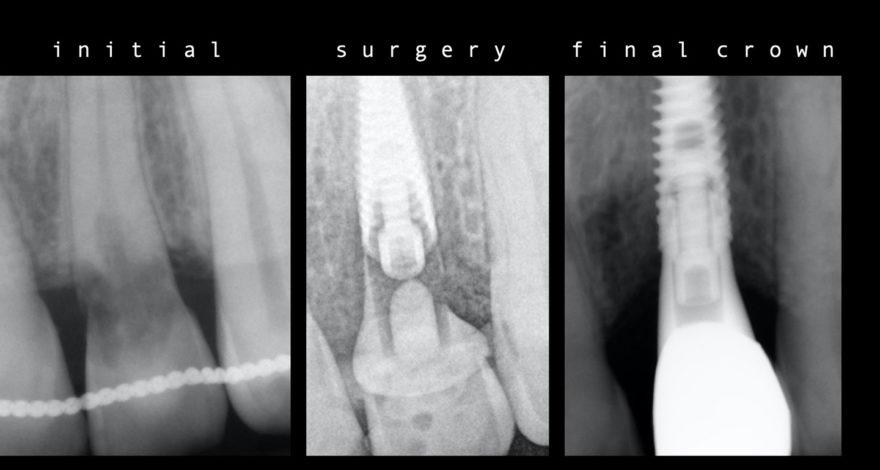 implante dental para solucionar reabsorción externa