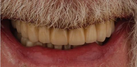 caso clínico de paciente fumador con problemas dentales