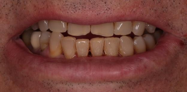 Caso clínico multidisciplinar para mejorar aspecto de sonrisa