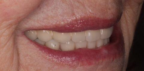 rehabilitación completa de sonrisa desdentada con prótesis fija