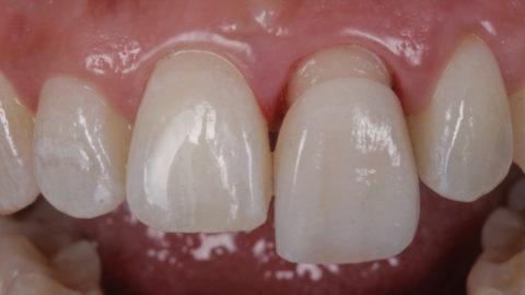 sustitución de corona dental de metal por una de disilicato de litio