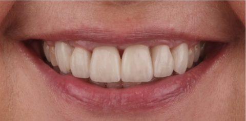Caso clínico de cirugía periodontal y preservación de papila con cambio de carillas dentales